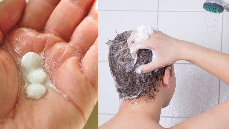 Schuppen Kopfhaut Hausmittel