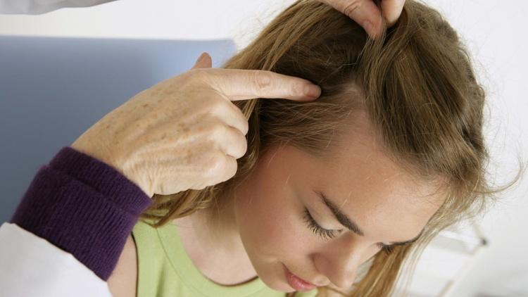 Hausmittel gegen Schuppen -tipps-pflegemittel-shampoo-haare